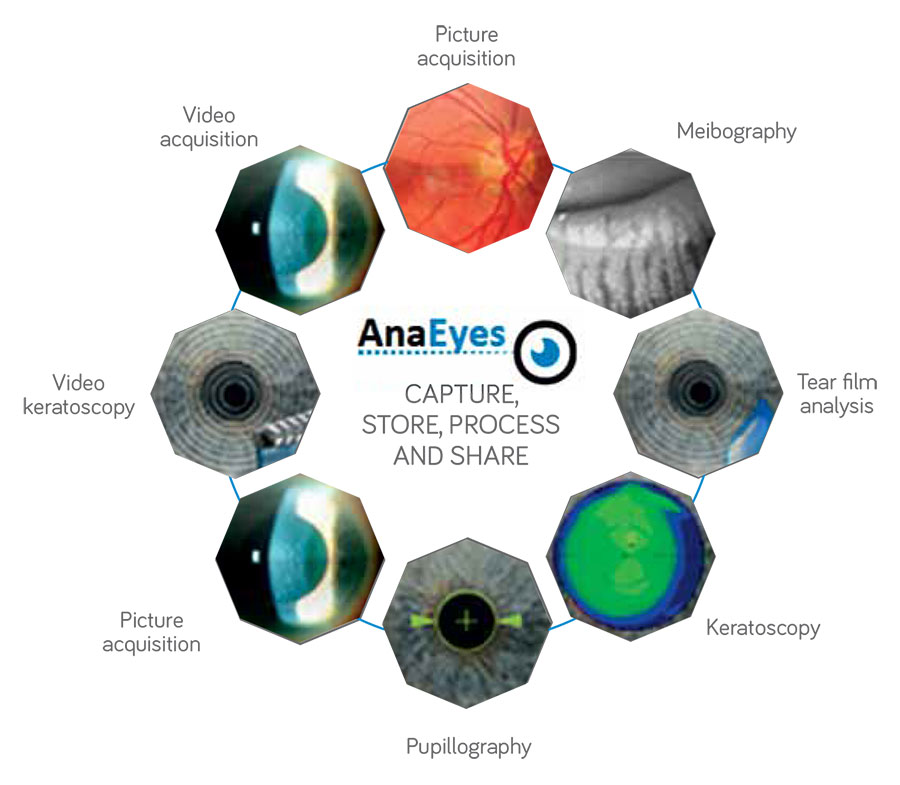 AnaEyes Software