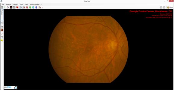 Retina 400 Capture 1