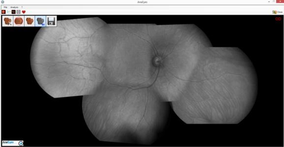Retina 400 Capture 4