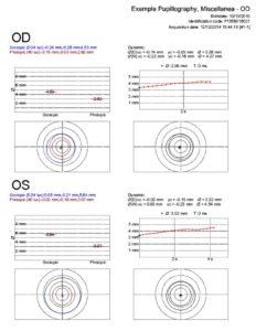 thumbnail of Example_Pupillography__Miscellanea__P1556816021_