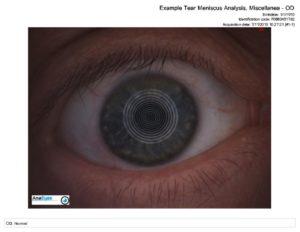 thumbnail of Example_Tear_Meniscus_Analysis__Miscellanea__P0660451782_